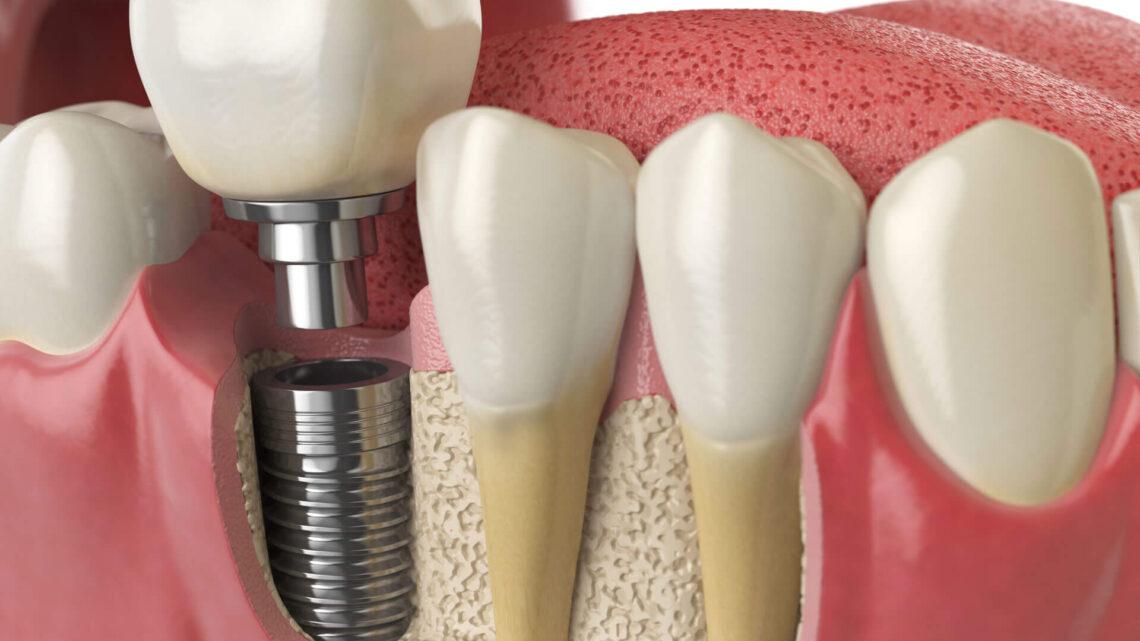 Implant dentaire : quels sont ses avantages ?