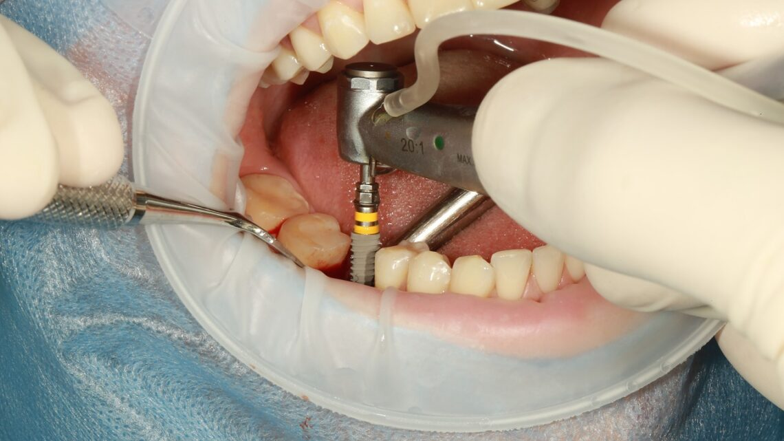 Implant dentaire : comment le dentiste l'installe ?