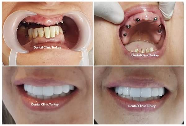 Implant Dentaire Turquie | Dentiste, Antalya Sante