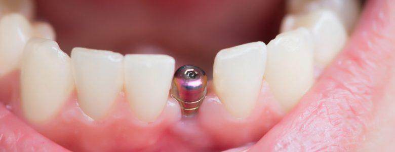 Implant dentaire : quelle est sa durée de vie ?