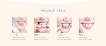 Promotion Carejoy Implant Dentaire, Les Maladies Des Dents De Modèle à La Restauration Et Au Pont De La Dent