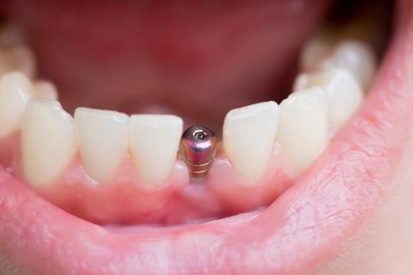 Pose Implant dentaire Antibes – Dentiste implantologue Le Cannet